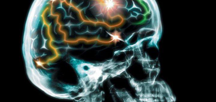 brain marker image
